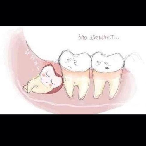 Когда режутся зубы мудрости как снять боль в домашних условиях