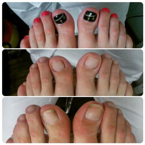 Педикюр с проблемными ногтями